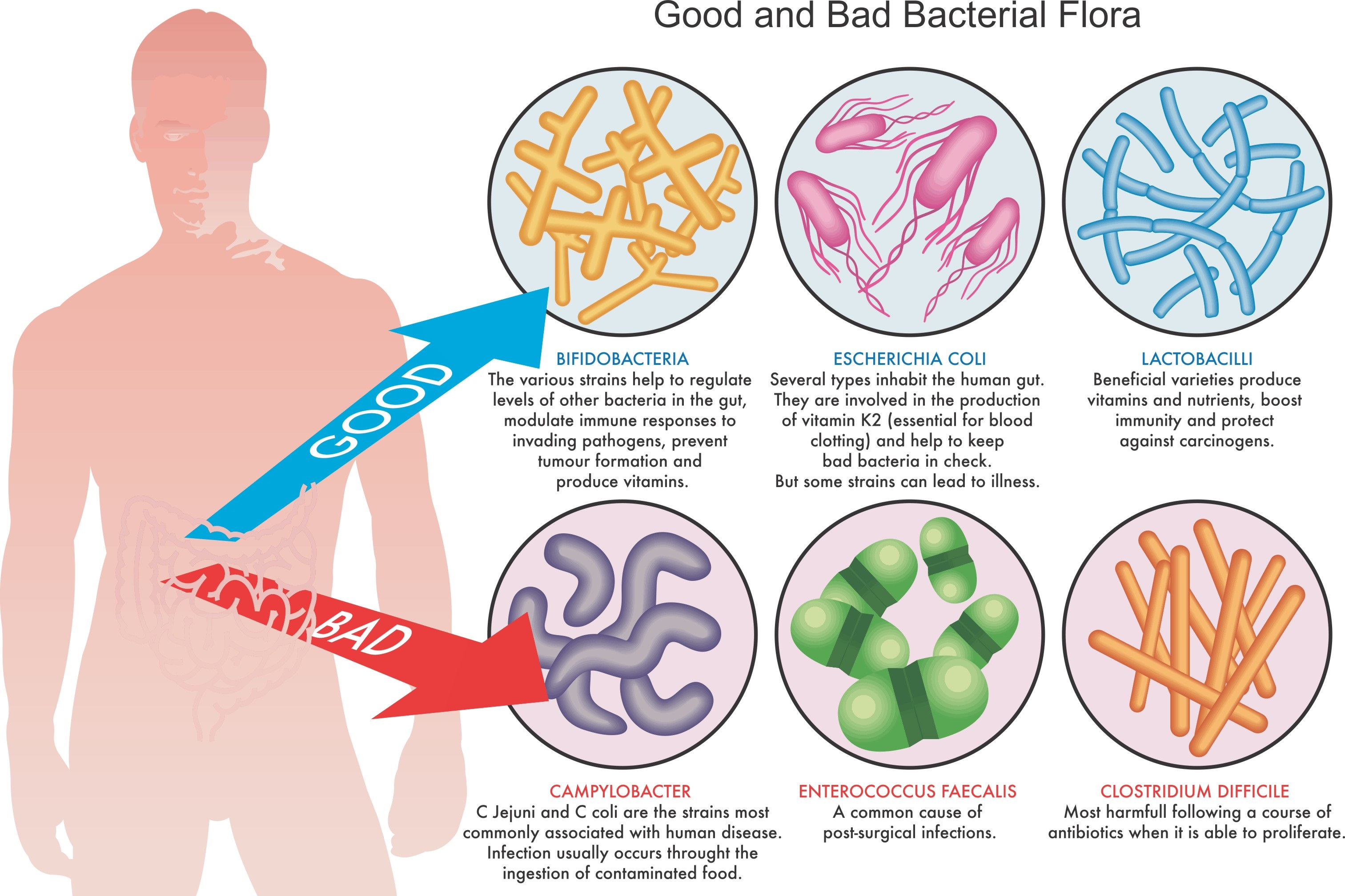 Good and Bad Bacteria in the Gut
